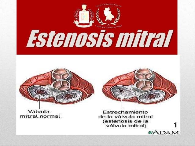 Estenosis mitral 1