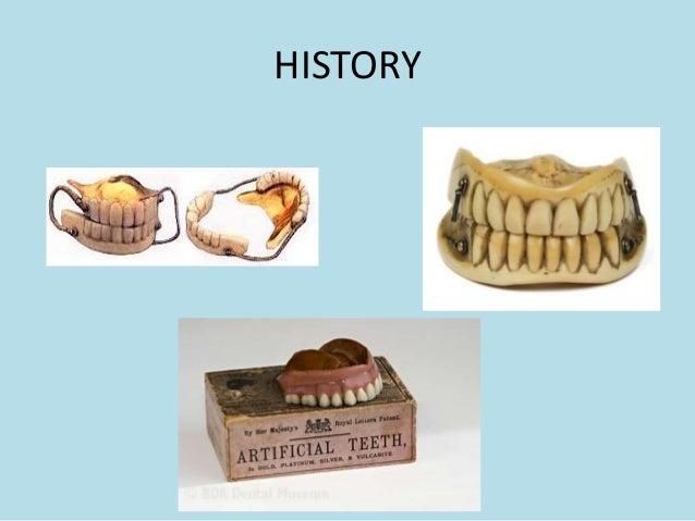 esthetics in complete denture