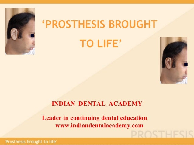 'PROSTHESIS BROUGHT TO LIFE' INDIAN DENTAL ACADEMY Leader in continuing dental education www.indiandentalacademy.com