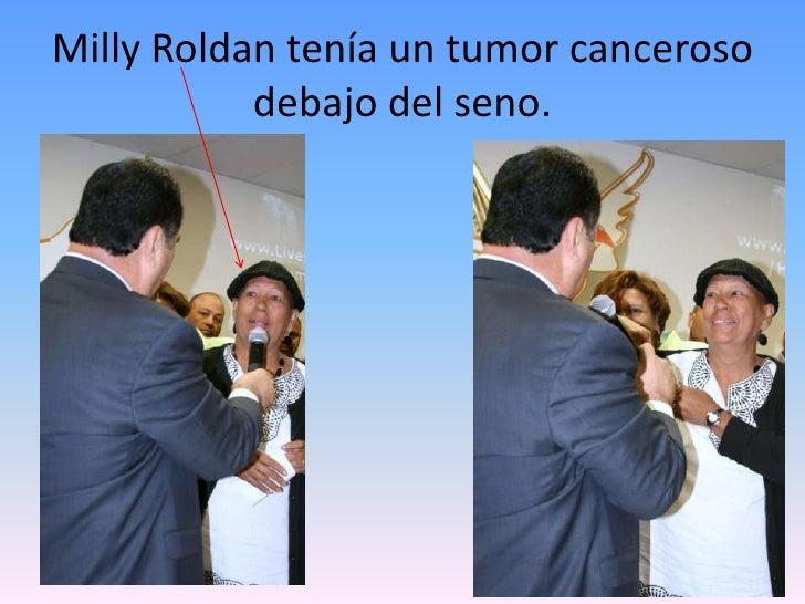 Milly Roldan tenía un tumor canceroso debajo del seno.<br />