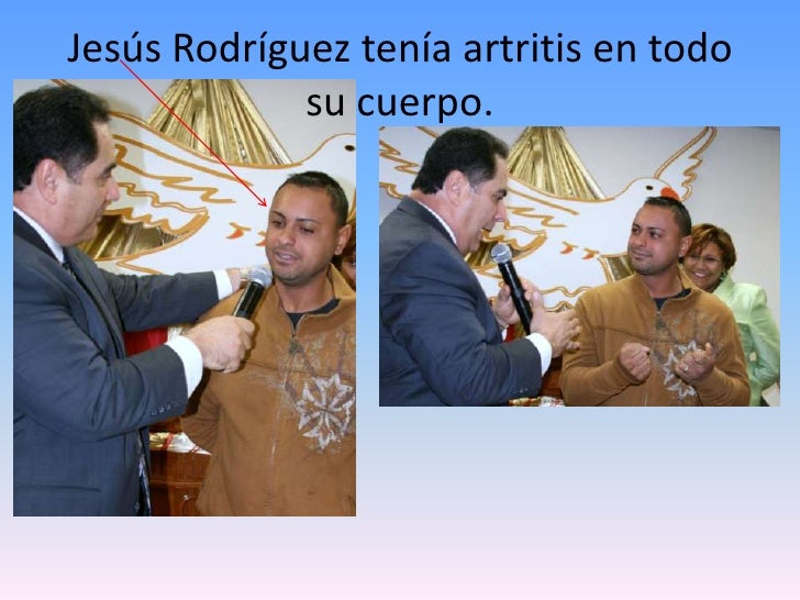 Jesús Rodríguez tenía artritis en todo su cuerpo.<br />