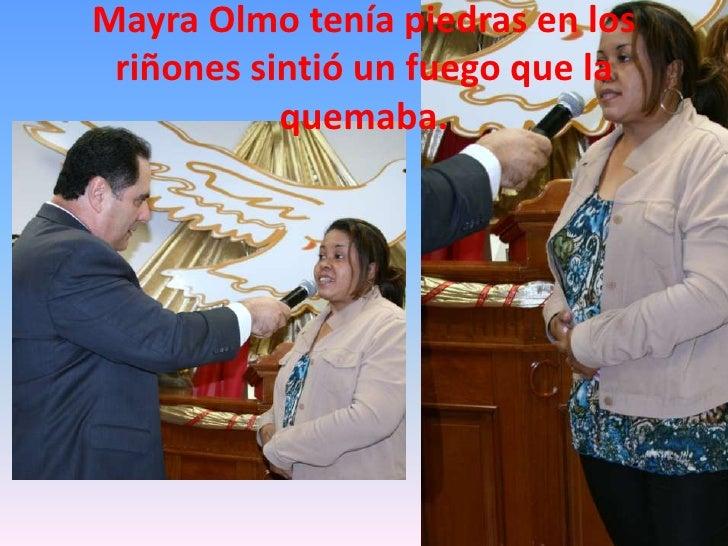 Mayra Olmo tenía piedras en los riñones sintió un fuego que la quemaba.<br />