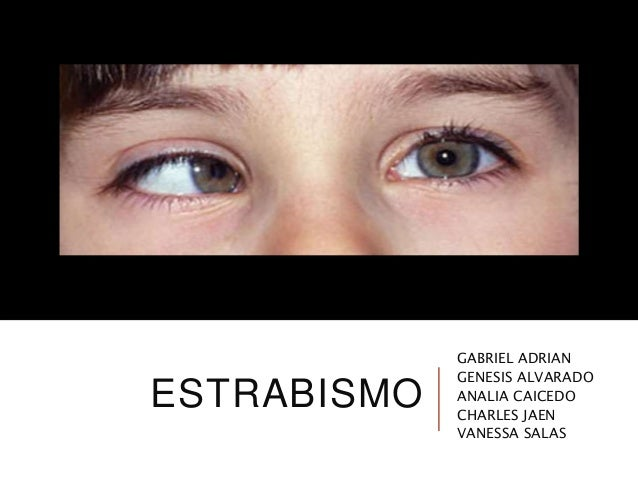 ESTRABISMO GABRIEL ADRIAN GENESIS ALVARADO ANALIA CAICEDO CHARLES JAEN VANESSA SALAS