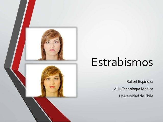 Estrabismos Rafael Espinoza Al IIITecnología Medica Universidad de Chile