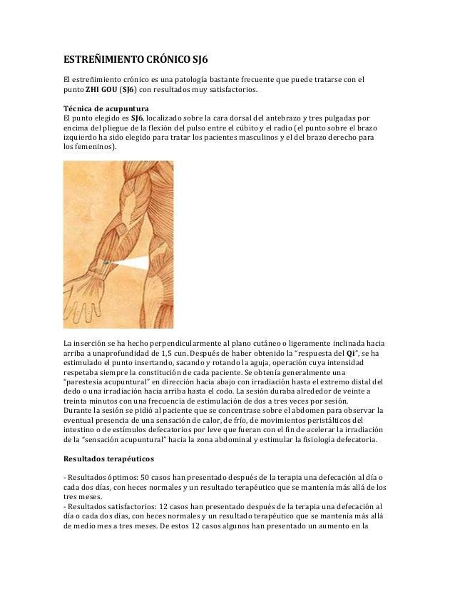 ESTREÑIMIENTO CRÓNICO SJ6 El estreñimiento crónico es una patología bastante frecuente que puede tratarse con el punto ZHI...