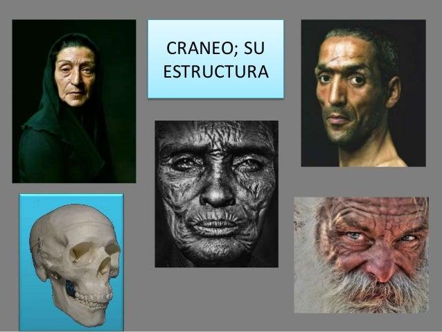 CRANEO; SU ESTRUCTURA