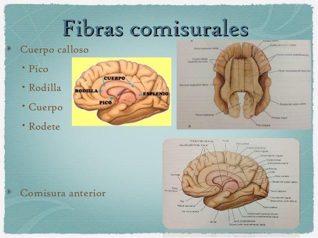 Estructura Interna De Los Hemisferios Cerebrales