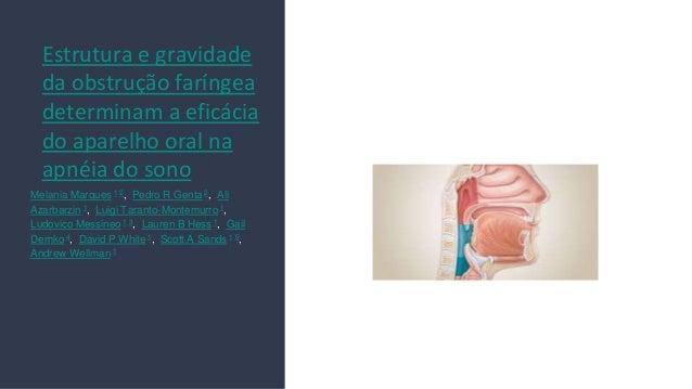 Estrutura e gravidade da obstru��o far�ngea determinam a efic�cia do aparelho oral na apn�ia do sono Melania Marques 1 2, ...