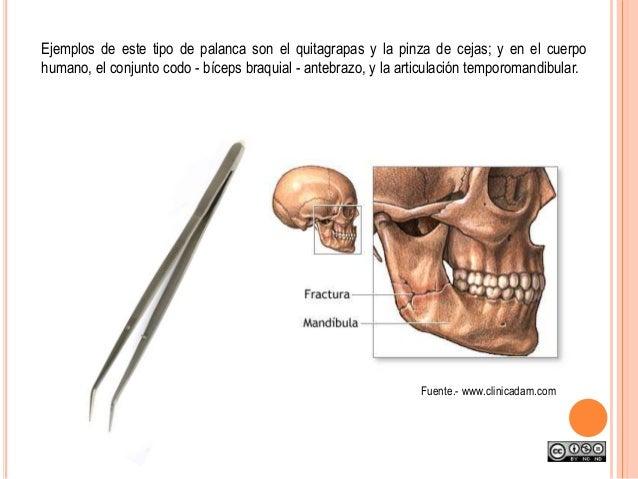 Ejemplos de este tipo de palanca son el quitagrapas y la pinza de cejas; y en el cuerpo humano, el conjunto codo - bíceps ...