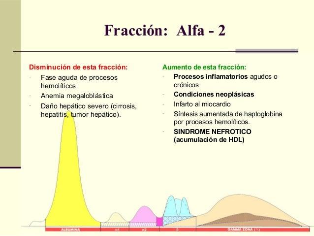 Fracción: Alfa - 2 Aumento de esta fracción: - Procesos inflamatorios agudos o crónicos - Condiciones neoplásicas - Infart...