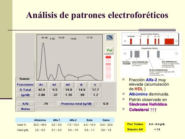  Fracción Alfa-2 muy elevada (acumulación de HDL )  Albúmina disminuida.  Patrón observado en Síndrome NefróticoSíndrom...