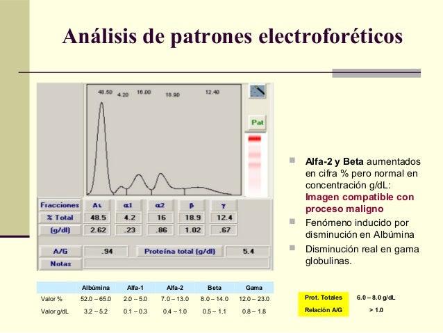  Alfa-2 y Beta aumentados en cifra % pero normal en concentración g/dL: Imagen compatible con proceso maligno  Fenómeno ...