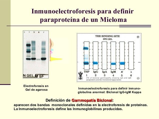 Inmunoelectroforesis para definir paraproteína de un Mieloma Definición de Gammopatía BiclonalGammopatía Biclonal: aparece...