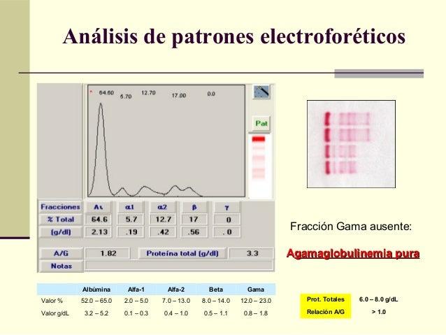 Fracción Gama ausente: AAgamaglobulinemia puragamaglobulinemia pura Albúmina Alfa-1 Alfa-2 Beta Gama Valor % 52.0 – 65.0 2...