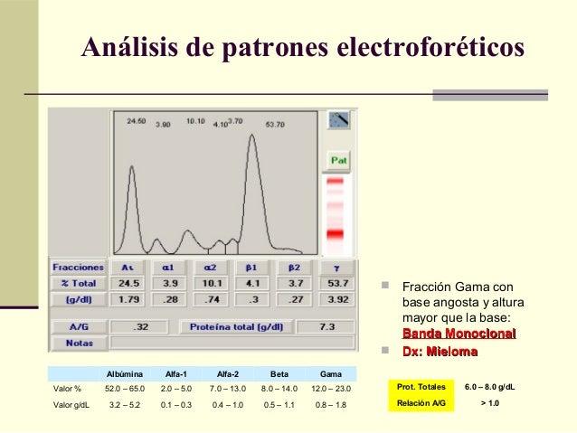  Fracción Gama con base angosta y altura mayor que la base: Banda MonoclonalBanda Monoclonal  Dx: MielomaDx: Mieloma Alb...