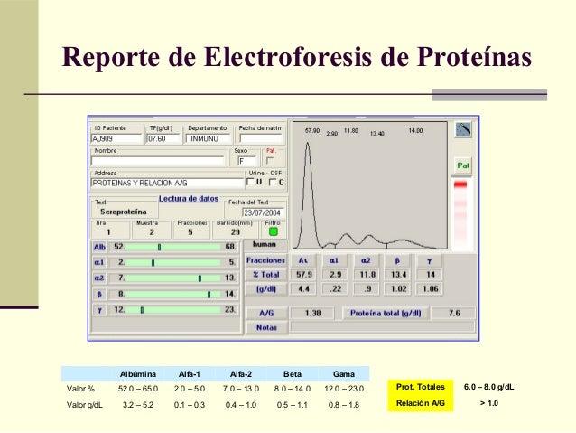 Reporte de Electroforesis de Proteínas Albúmina Alfa-1 Alfa-2 Beta Gama Valor % 52.0 – 65.0 2.0 – 5.0 7.0 – 13.0 8.0 – 14....