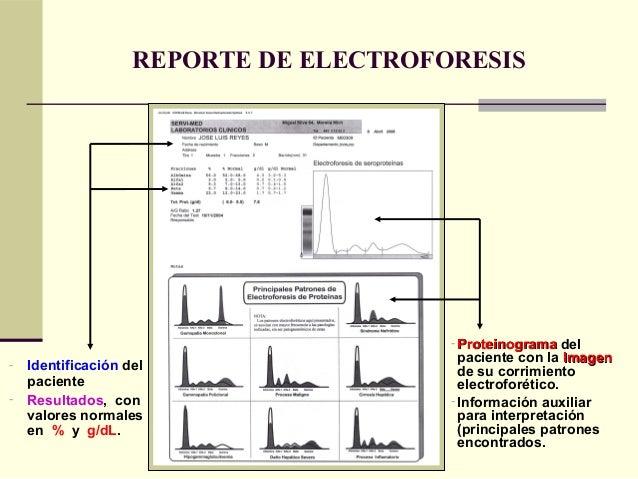 REPORTE DE ELECTROFORESIS - ProteinogramaProteinograma del paciente con la ImagenImagen de su corrimiento electroforético....