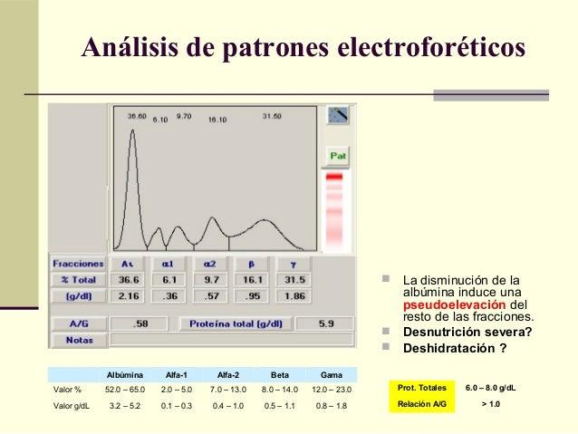 Análisis de patrones electroforéticos  La disminución de la albúmina induce una pseudoelevación del resto de las fraccion...