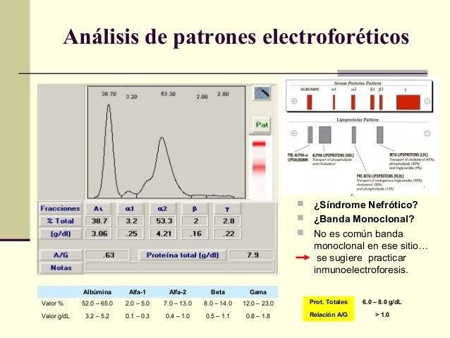 Proteínas normales  Alfa-2 muy elevada y Beta muy disminuida  ¿Síndrome Nefrótico?  ¿Banda Monoclonal?  No es común ...