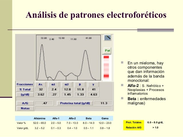  En un mieloma, hay otros componentes que dan información además de la banda monoclonal:  Alfa-2 : S. Nefrótico + Neopla...