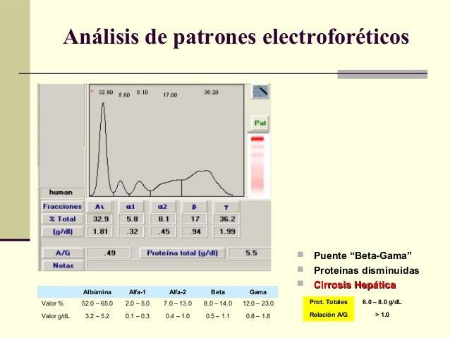" Puente ""Beta-Gama""  Proteinas disminuidas  Cirrosis HepáticaCirrosis Hepática Albúmina Alfa-1 Alfa-2 Beta Gama Valor %..."