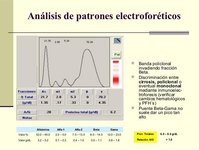  Banda policlonal invadiendo fracción Beta.  Discriminación entre cirrosis, policlonal o eventual monoclonal mediante in...