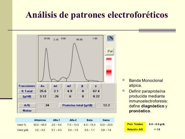  Banda Monoclonal atípica.  Definir paraproteína producida mediante inmunoelectroforesis: define diagnóstico y pronóstic...