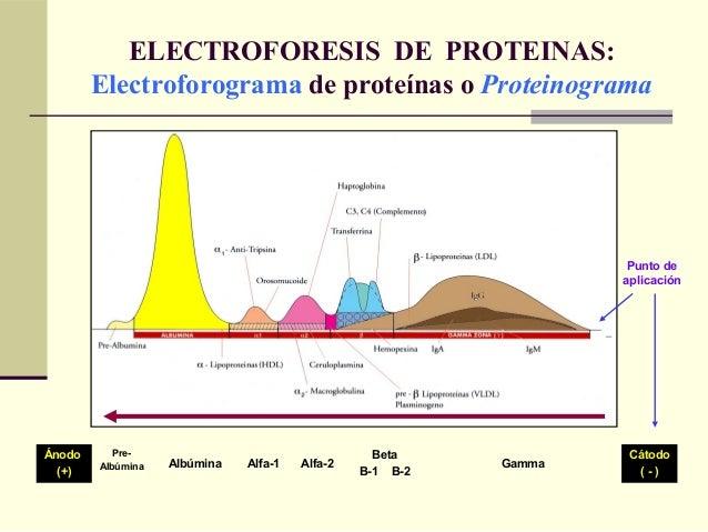 ELECTROFORESIS DE PROTEINAS: Electroforograma de proteínas o Proteinograma Ánodo (+) Pre- Albúmina Albúmina Alfa-1 Alfa-2 ...