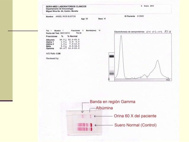  Electroforesis de Proteínas de Líquido CefalorraquídeoElectroforesis de Proteínas de Líquido Cefalorraquídeo para invest...