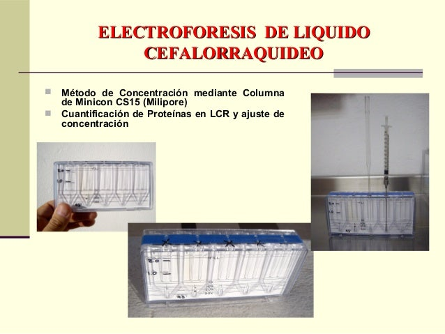 INDICES DE PROTEINAS YINDICES DE PROTEINAS Y GLOBULINAS DEL SUERO / LCRGLOBULINAS DEL SUERO / LCR