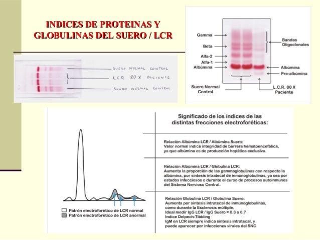 CAUSAS DE AUMENTO DE PROTEINAS DELCAUSAS DE AUMENTO DE PROTEINAS DEL LIQUIDO CEFALORRAQUIDEOLIQUIDO CEFALORRAQUIDEO Por au...