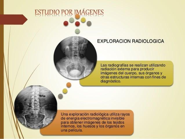 ESTUDIOS POR IMAGENES