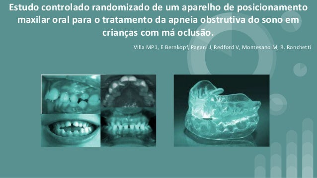 Estudo controlado randomizado de um aparelho de posicionamento maxilar oral para o tratamento da apneia obstrutiva do sono...
