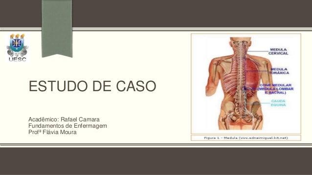 ESTUDO DE CASOAcadêmico: Rafael CamaraFundamentos de EnfermagemProfª Flávia Moura