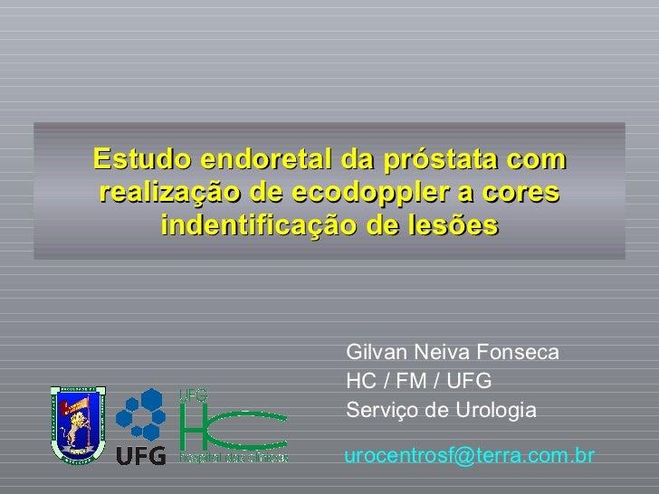 Estudo endoretal da próstata com realização de ecodoppler a cores indentificação de lesões Gilvan Neiva Fonseca HC / FM / ...