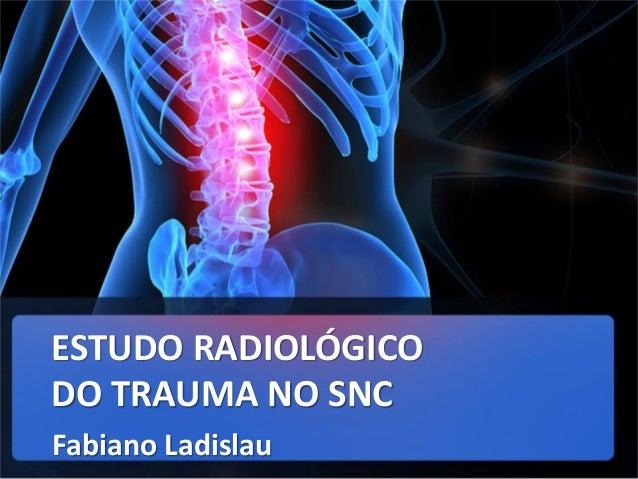 ESTUDO RADIOLÓGICO DO TRAUMA NO SNC Fabiano Ladislau
