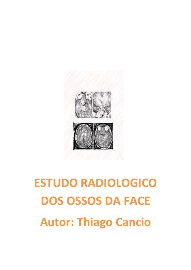ESTUDO RADIOLOGICO DOS OSSOS DA FACEAutor: Thiago Cancio