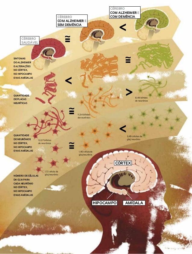 cérebro com alzheimer e sem demência  cérebro com alzheimer e com demência  cérebro saudável  sintomas do alzheimer e alte...