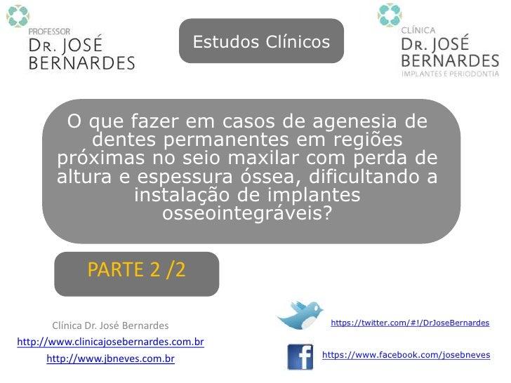 Estudos Clínicos         O que fazer em casos de agenesia de            dentes permanentes em regiões        próximas no s...