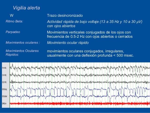 Vigilia alerta  W                      Trazo desincronizadoRitmo Beta:              Actividad rápida de bajo voltaje (13 a...