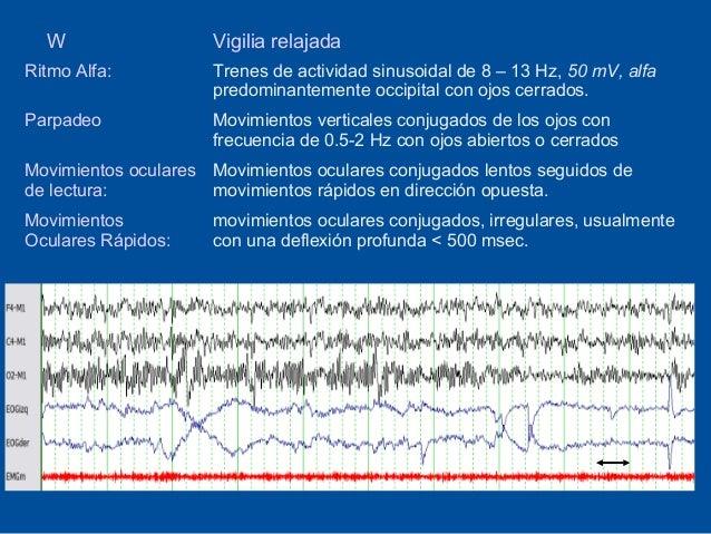 W                  Vigilia relajadaRitmo Alfa:          Trenes de actividad sinusoidal de 8 – 13 Hz, 50 mV, alfa          ...