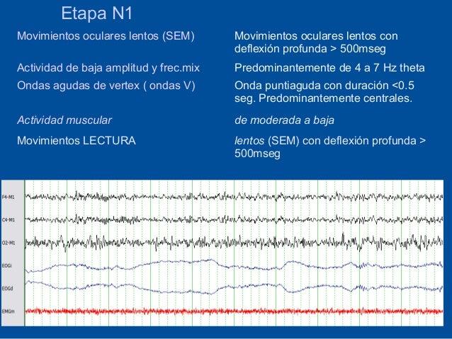 Etapa N1Movimientos oculares lentos (SEM)       Movimientos oculares lentos con                                        def...