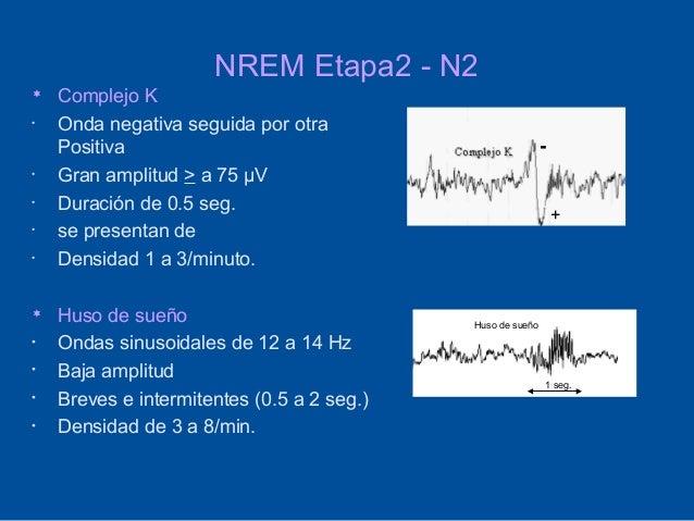 NREM Etapa2 - N2   Complejo K•   Onda negativa seguida por otra    Positiva                                              ...