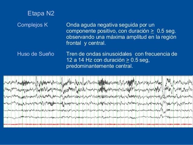 Etapa N2      Complejos K     Onda aguda negativa seguida por un                      componente positivo, con duración > ...