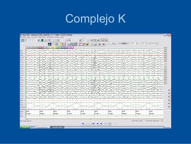 Complejo K