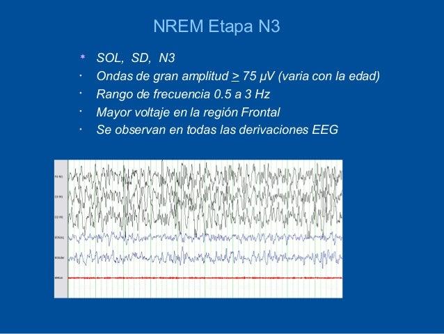 NREM Etapa N3   SOL, SD, N3•   Ondas de gran amplitud > 75 µV (varia con la edad)•   Rango de frecuencia 0.5 a 3 Hz•   Ma...