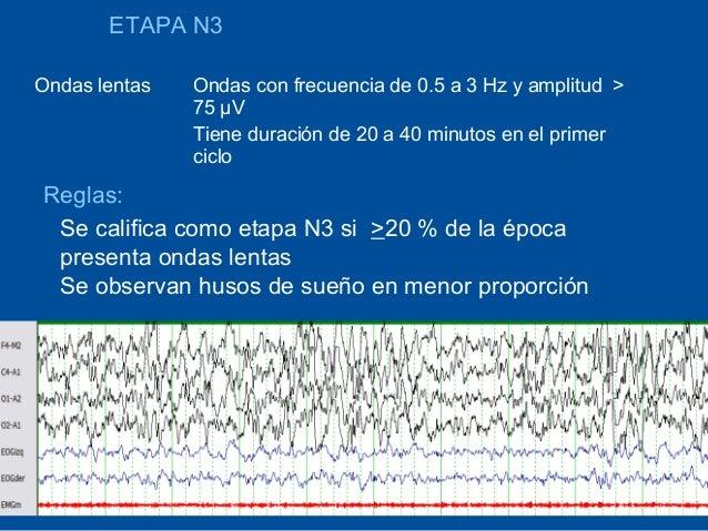 ETAPA N3Ondas lentas   Ondas con frecuencia de 0.5 a 3 Hz y amplitud >               75 µV               Tiene duración de...