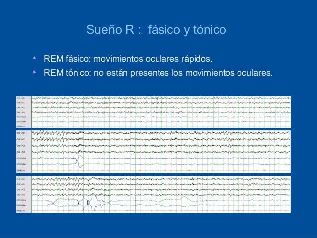 Sueño R : fásico y tónico   REM fásico: movimientos oculares rápidos.   REM tónico: no están presentes los movimientos o...
