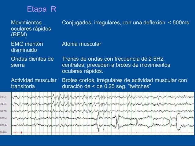 Etapa RMovimientos         Conjugados, irregulares, con una deflexión < 500msoculares rápidos(REM)EMG mentón          Aton...