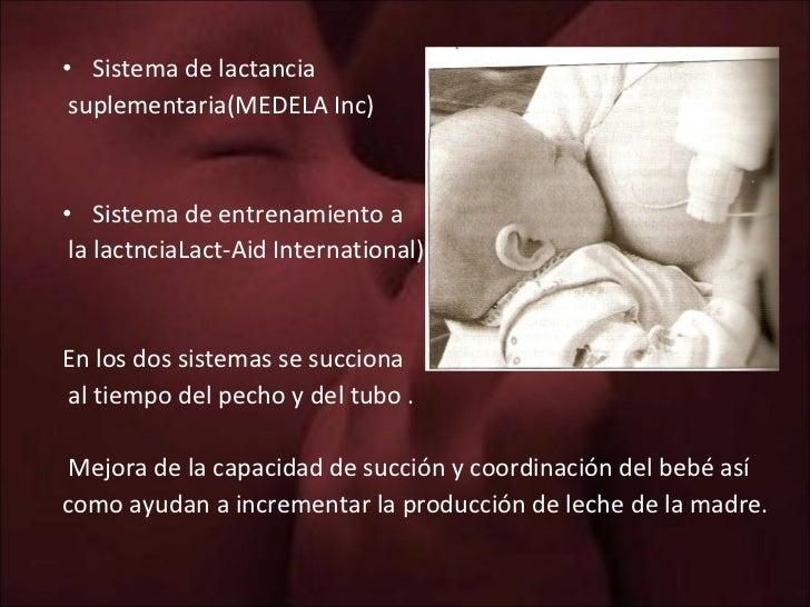 <ul><li>Sistema de lactancia  </li></ul><ul><li>suplementaria(MEDELA Inc) </li></ul><ul><li>Sistema de entrenamiento a </l...